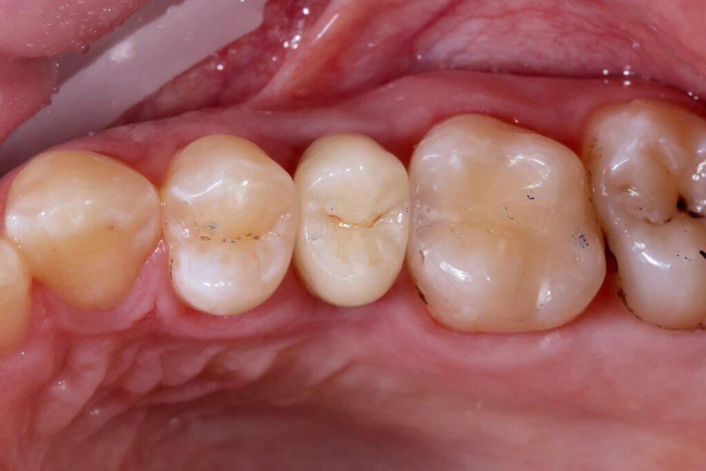 Имплантаты после