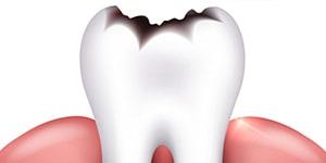 Кариес зубов, причины, симптомы...
