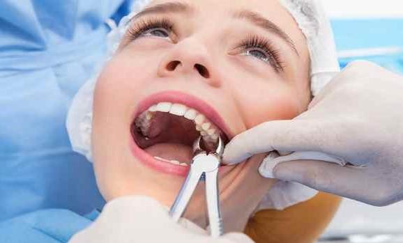 Типы удаления зубов