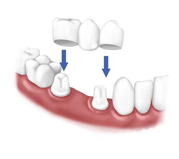 Стоматологические мосты
