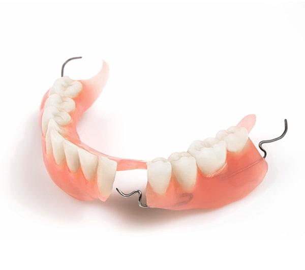 виды протезирование зубов - Частичный протез