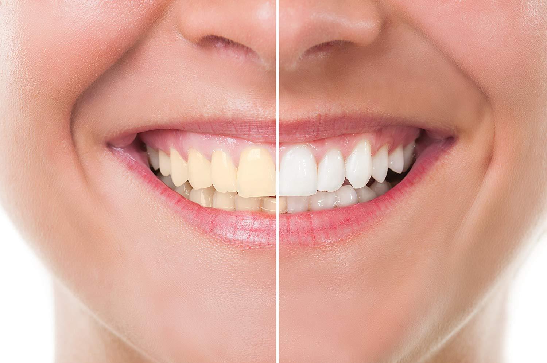 Варианты отбеливания зубов