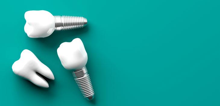 Где установить зубные импланты