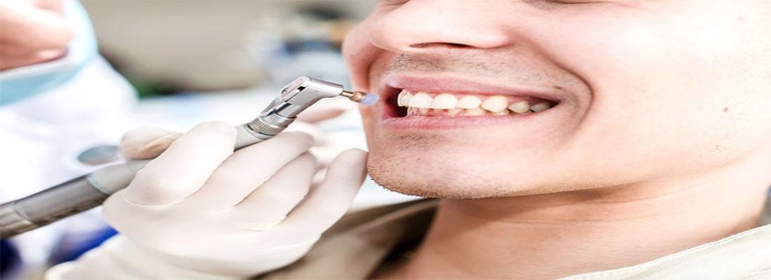 Профессиональная чистка зубов у стоматолога