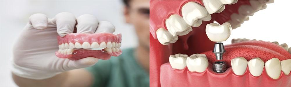 Сравнение протезов и зубных имплантов