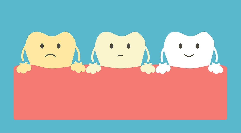 Отбеливание зубов 1