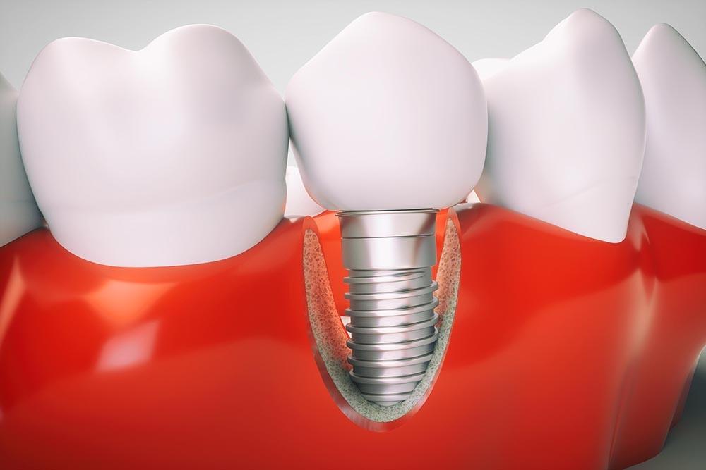 Стоимость зубного импланта