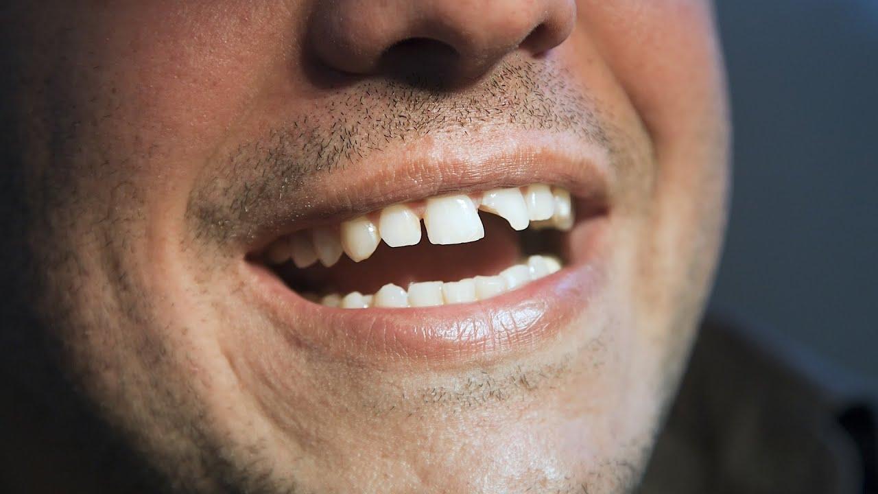 Реставрация сколотых и сломанных зубов