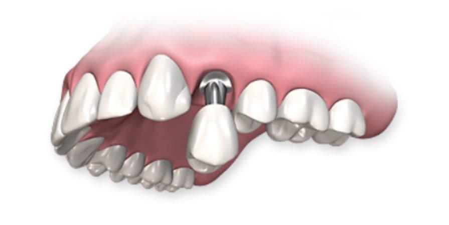Имплантация зубов в Симферополе
