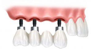 Вставить зубы в Симферополе - Фиксированный мост с поддержкой имплантатов