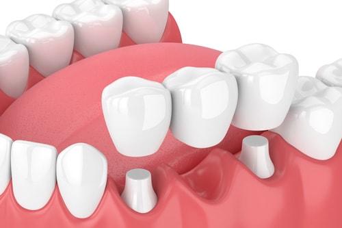 Фиксированный мост с поддержкой на зубах