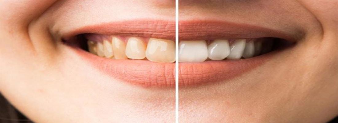 Обесцвечивание зубов