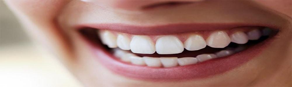 Виниры на зубы в Симферополе