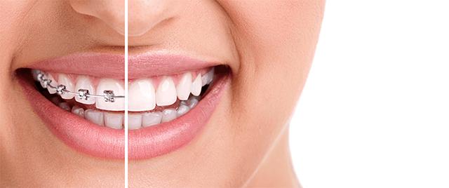 Ортодонтия в Симферополе