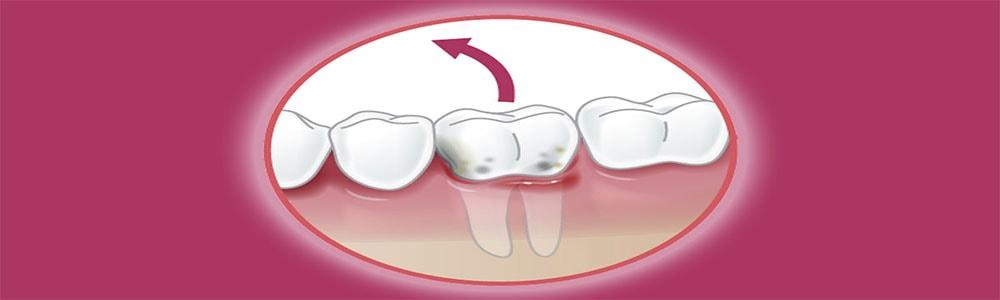 Удаление зубов Симферополь