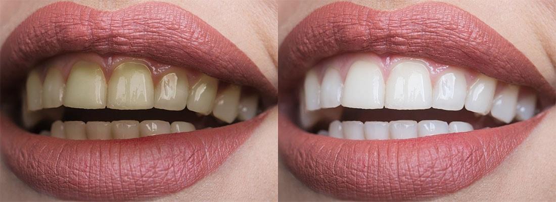Косметическое отбеливание зубов в Симферополе