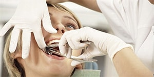 Сложное удаление зубов