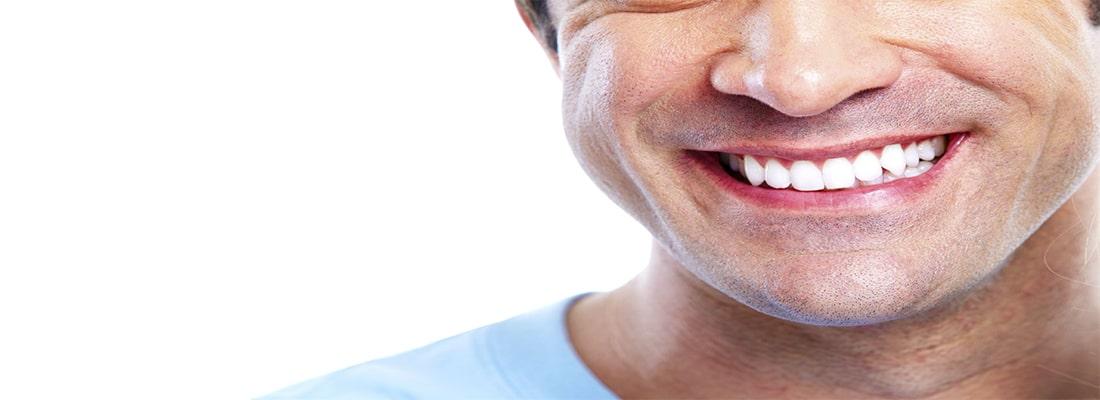 Как подготовиться к отбеливанию зубов