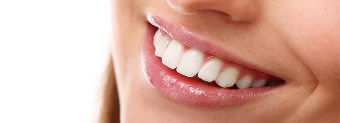 Косметические стоматологические услуги