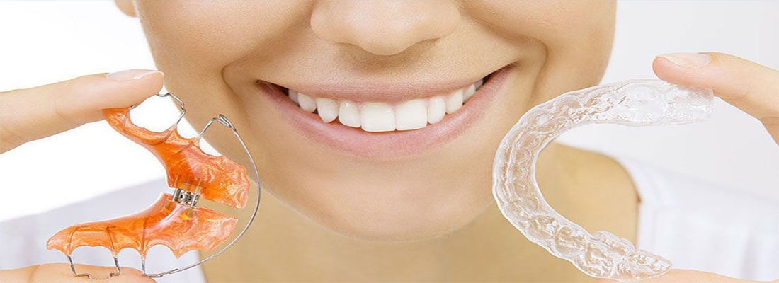 Выпрямление зубов – виды брекетов