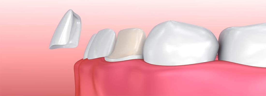 Установка зубных виниров