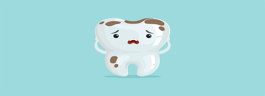 Причины обесцвечивания зубов