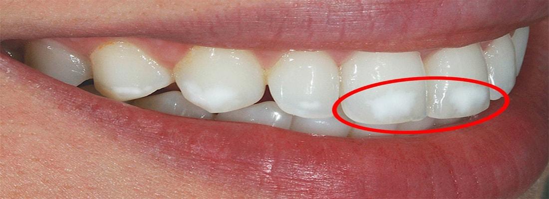 Причины появления белых пятен на зубах