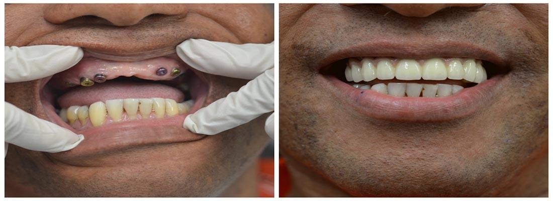Полная реконструкция и восстановление рта