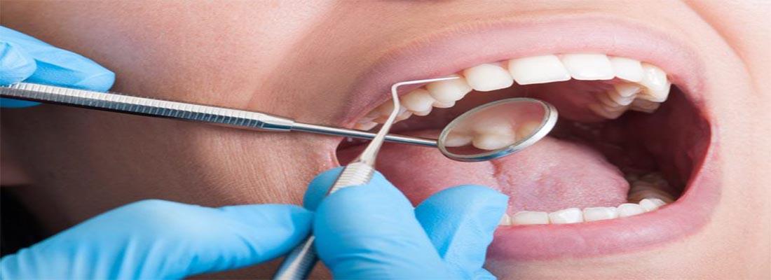 Советы по улучшению здоровья полости рта