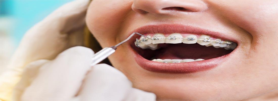 Какие проблемы исправляет ортодонтическое лечение