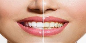 Желтизна зубов