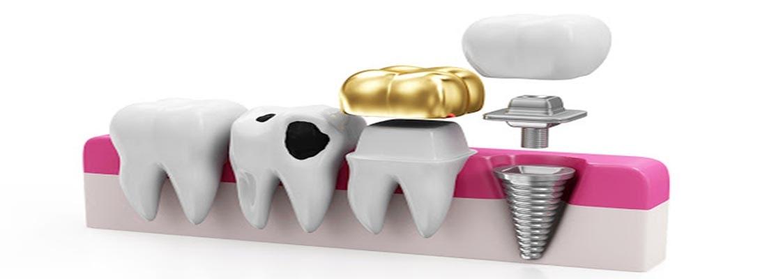 Варианты восстановления зубов в стоматологии