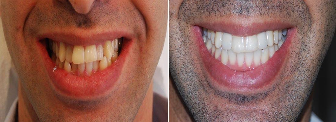 Выравнивание кривых зубов и неправильного прикуса