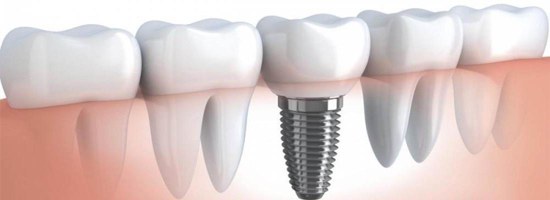 Стоимость зубных имплантатов