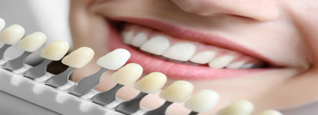 Процедуры косметической стоматологии