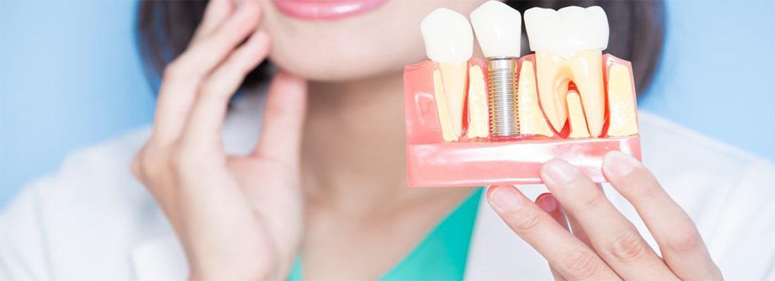 Как ухаживать за зубным имплантатом после операции