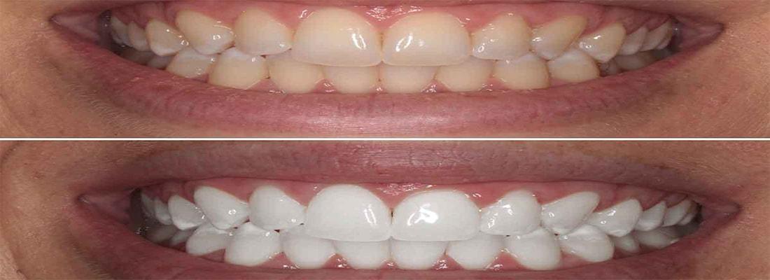 Факторы влияющие на результаты отбеливания зубов