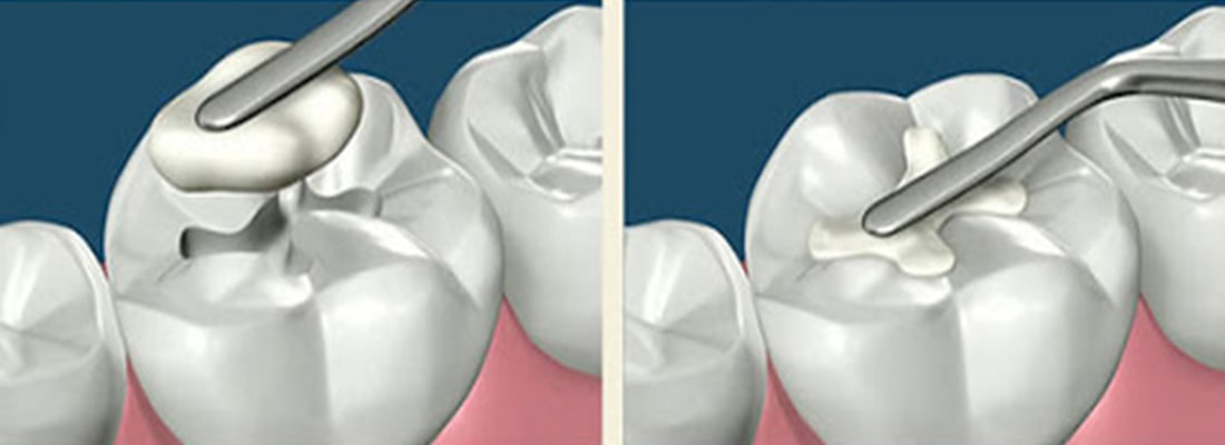 зачем нужно пломбирование зуба