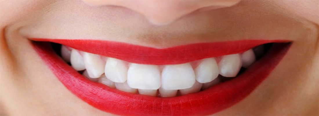 Лазерное отбеливание зубов и отбеливающие гели