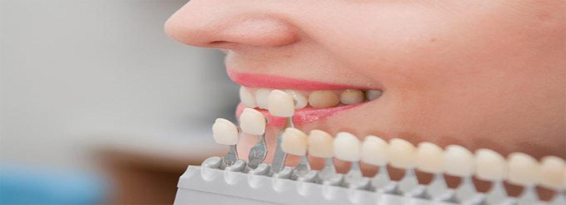 Виниры как альтернатива ортодонтии