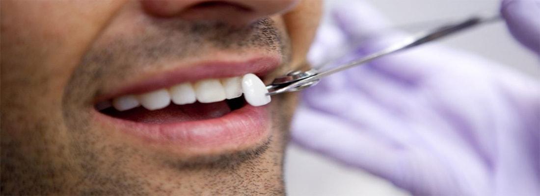 Процесс установки зубных виниров