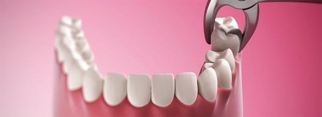 Стоимость удаления зуба