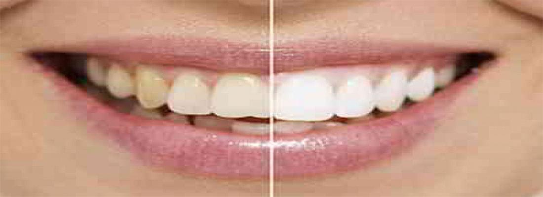 Украсьте свою улыбку отбеливанием зубов