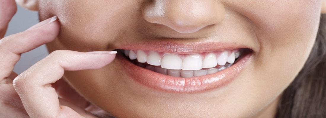 сохранение результатов отбеливания зубов