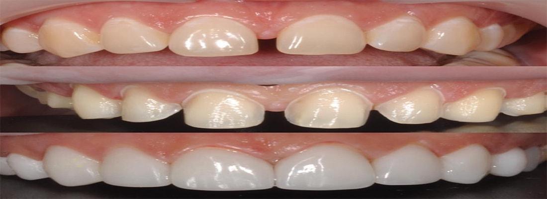 Лечение зубных щелей