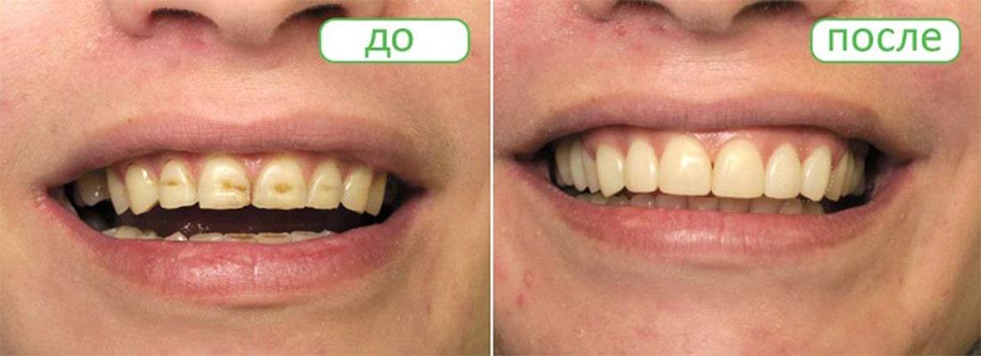 Причины эрозии зубов