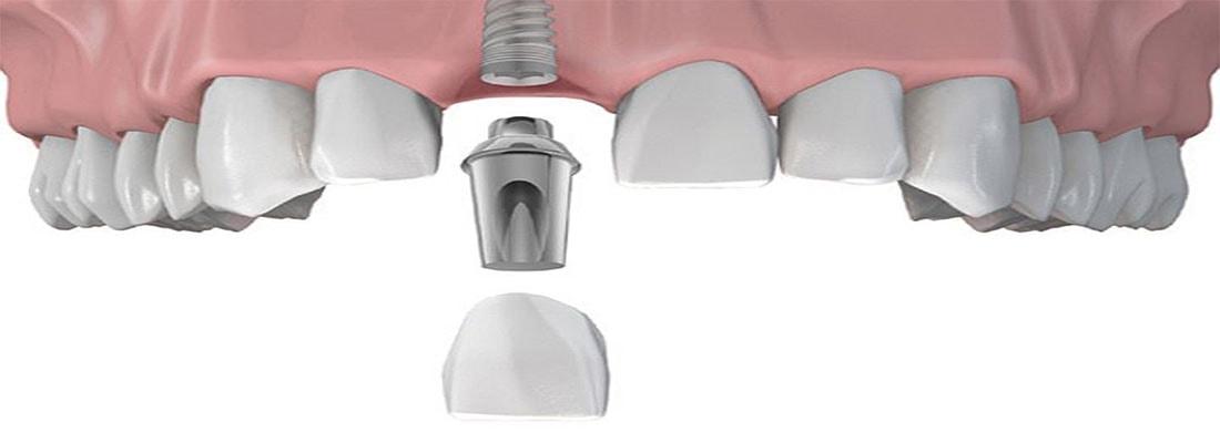 Зубные имплантаты для передних зубов