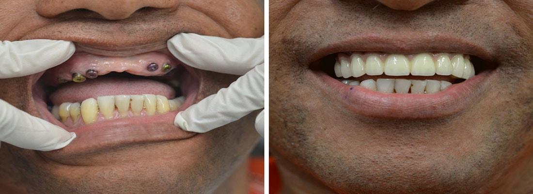 реконструкция рта с помощью имплантологии