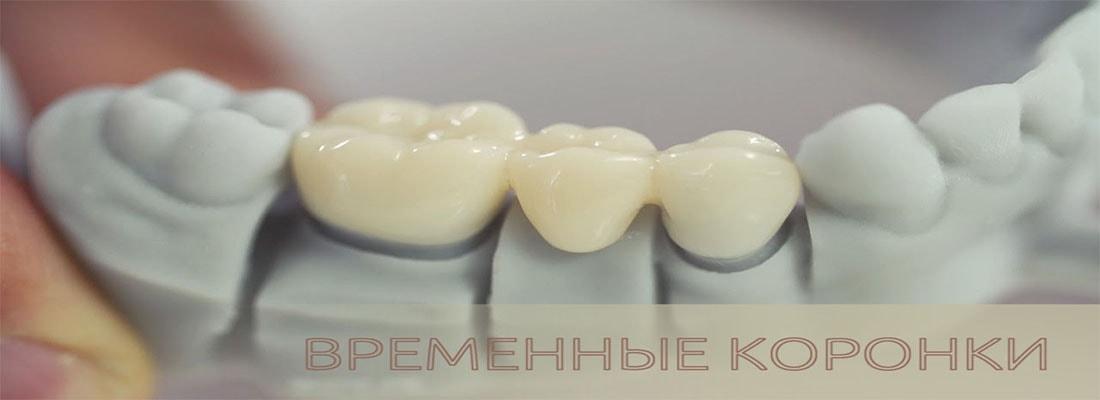 Как ухаживать за временными зубными коронками