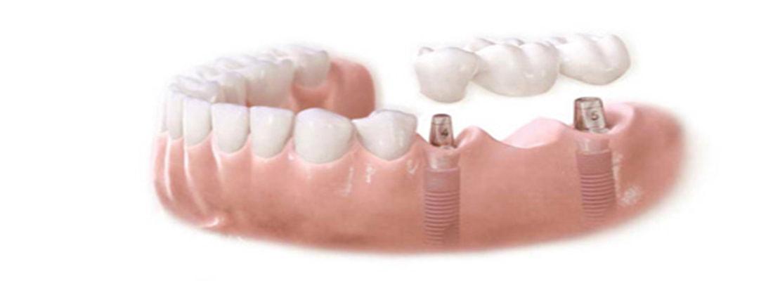 Стоматологические мосты - Имплантология